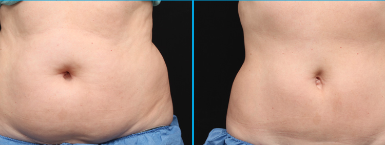 Body Contouring With Coolsculpting1